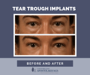 Tear Trough Implants Before and After